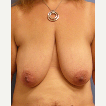 45-54 year old woman treated with Breast Lift before 3604921