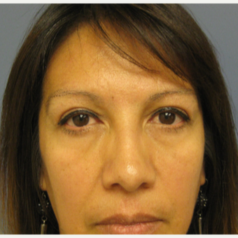 45-54 year old woman treated with Eyelid Surgery after 3651922