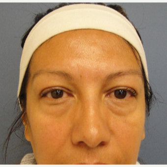 45-54 year old woman treated with Eyelid Surgery before 3651922