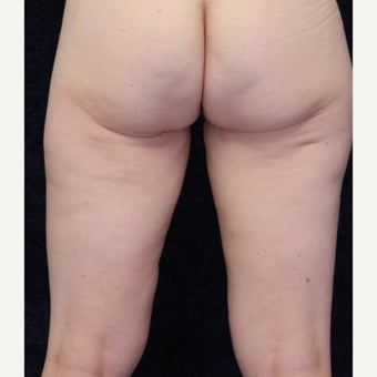 36 year old woman treated with Medial Thigh Lift and Beltlift 1642346