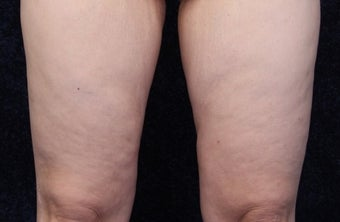 36 year old woman treated with Medial Thigh Lift and Beltlift