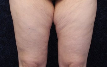 36 year old woman treated with Medial Thigh Lift and Beltlift before 1642346