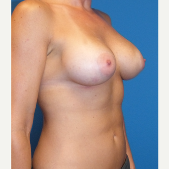 Breast Implants after 3807209