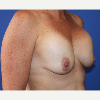 35-44 year old woman treated with Breast Implant Revision before 3658385