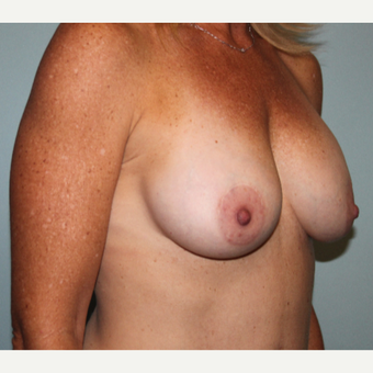 35-44 year old woman treated with Breast Implant Revision after 3658385
