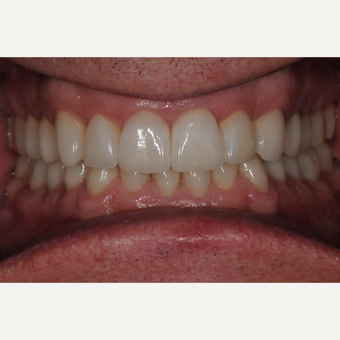 Full Mouth Rehabilitation after 3436672