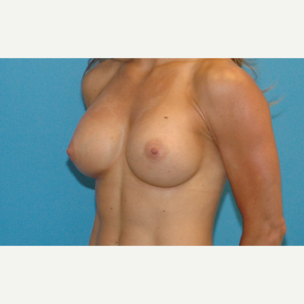 24 year old woman treated with Breast Implants after 3186293
