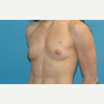 24 year old woman treated with Breast Implants before 3186293