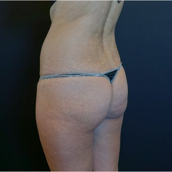 25-34 year old woman treated with Butt Lift before 2530366