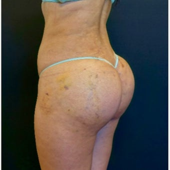 25-34 year old woman treated with Butt Lift after 2530366