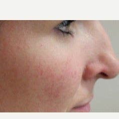 Facial mole removal after 2125191