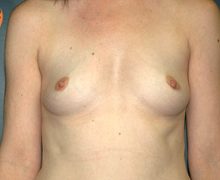 Breast Implants before 3545159