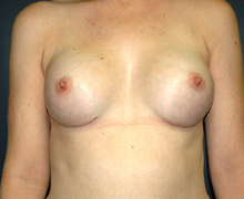 Breast Implants after 3545159