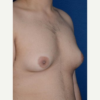 Male Breast Reduction using BodyTite liposuction for stubborn gynecomastia 1994195