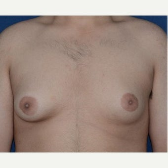 Male Breast Reduction using BodyTite liposuction for stubborn gynecomastia before 1994195