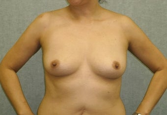 Breast augmentation with fat transfer before 607411