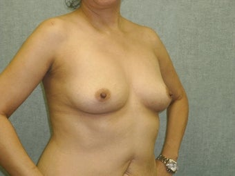 Breast augmentation with fat transfer 607411