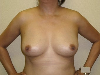Breast augmentation with fat transfer after 607411