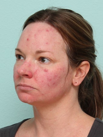 33 Year Old Female Treated for Acne  1227177