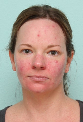 33 Year Old Female Treated for Acne  before 1227177