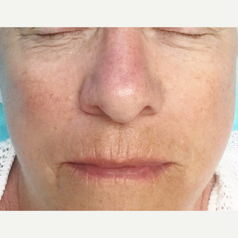 73 year old woman treated with Microneedling