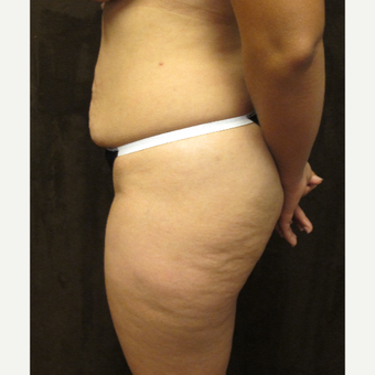 35-44 year old woman treated with Liposuction before 3027805