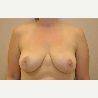 35-44 year old woman treated with Breast Reduction after 3103181