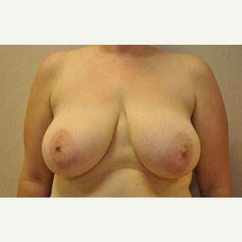 35-44 year old woman treated with Breast Reduction before 3103181