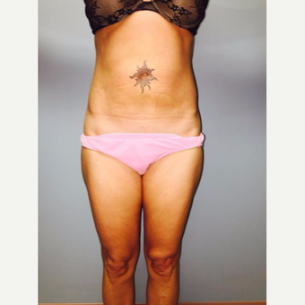 25-34 year old woman treated with Laser Liposuction after 3764150