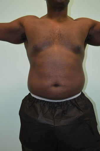 VASER Liposuction before 1116723