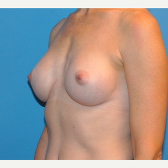 Breast Augmentation after 3783434