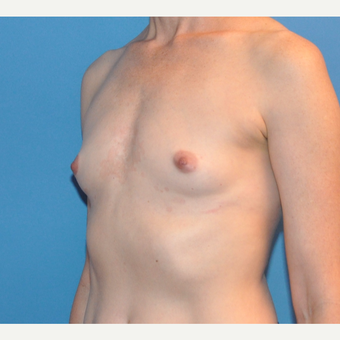 Breast Augmentation before 3783434