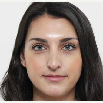 18-24 year old woman treated with Rhinoplasty before 3340432