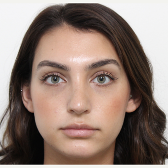 18-24 year old woman treated with Rhinoplasty after 3340432