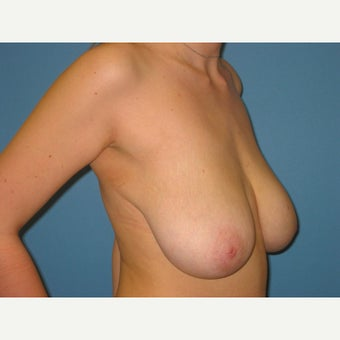 18-24 year old woman treated with Breast Reduction before 2389316