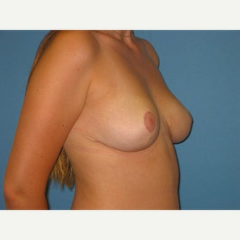18-24 year old woman treated with Breast Reduction after 2389316