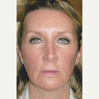 51 year old woman treated with Sculptra, HA Filler, Neurotoxin, Soft Lift before 3055329