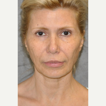 45-54 year old woman treated with Facelift before 3004646