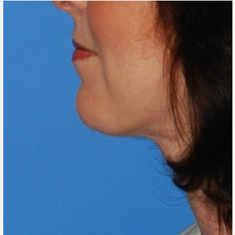 35-44 year old woman treated with Chin Implant & Neck Lift after 3649798