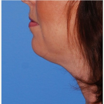35-44 year old woman treated with Chin Implant & Neck Lift before 3649798