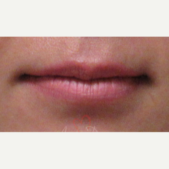 25-34 year old woman treated with Lip Augmentation before 3504913