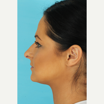 25-34 year old woman treated with Rhinoplasty before 3691266