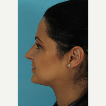 25-34 year old woman treated with Rhinoplasty after 3691266
