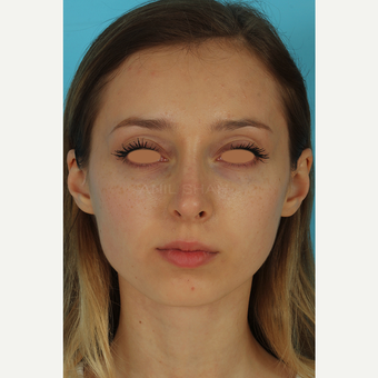 25-34 year old woman treated with Rhinoplasty before 3628989