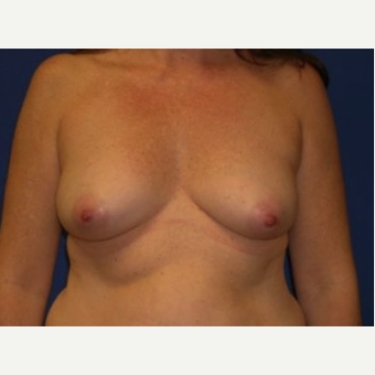 25-34 year old woman treated with Breast Augmentation before 3220119