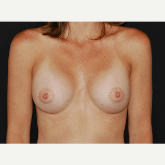 25-34 year old woman treated with Breast Implants after 3650941