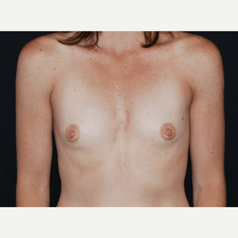 25-34 year old woman treated with Breast Implants before 3650941
