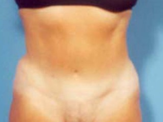Tummy Tuck after 1033066