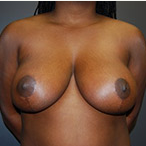 23 year old female underwent breast reduction for back pain after 3570318