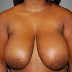 23 year old female underwent breast reduction for back pain before 3570318